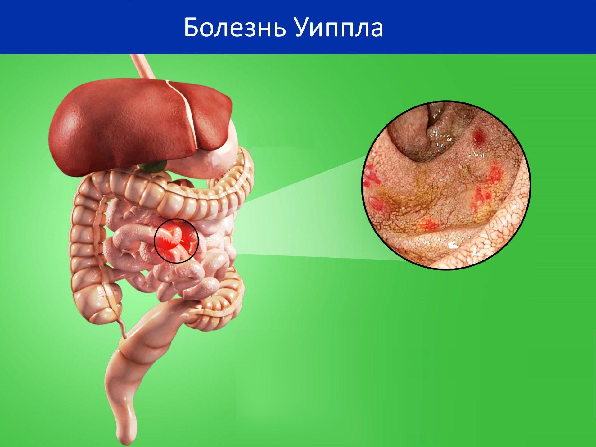 Редкие заболевания кишечника