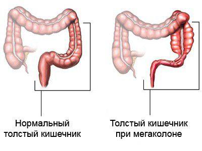 патология толстой кишки