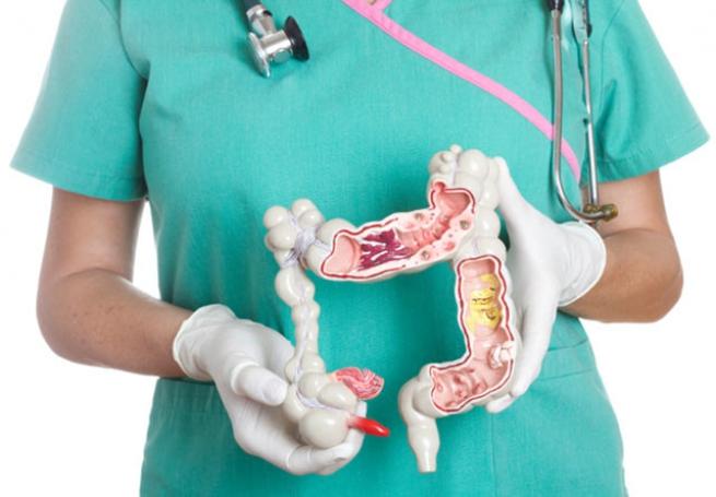 Как называется врач который смотрит кишечник. Кто занимается кишечником. Заболевания, которые лечит гастроэнтеролог